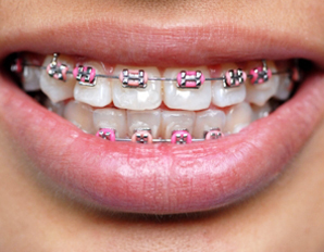Hot Pink Or Light Pink Braces Yahoo Answers
